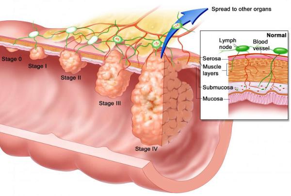 Risks Factors of Anal Cancer