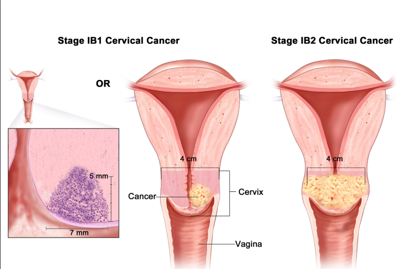 Proactive With Cervical Cancer
