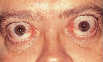 bulging-eyes-Graves-Disease