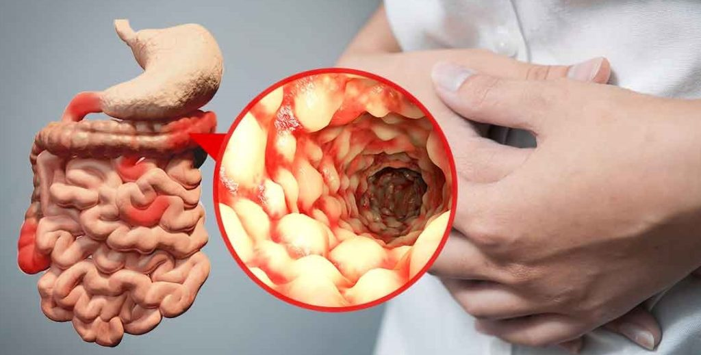A Cure for Crohn's Disease — How Hopeful Should We Be