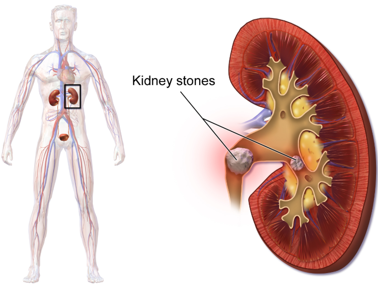 11 Kidney Stone Home Remedy Advice
