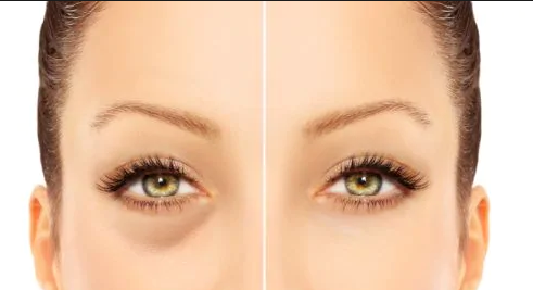 How to get rid of puffy eyes and dark circles in the right way